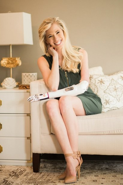 Miss Iowa 2013 Nicole Kelly Shares Experience With New Bionic Arm